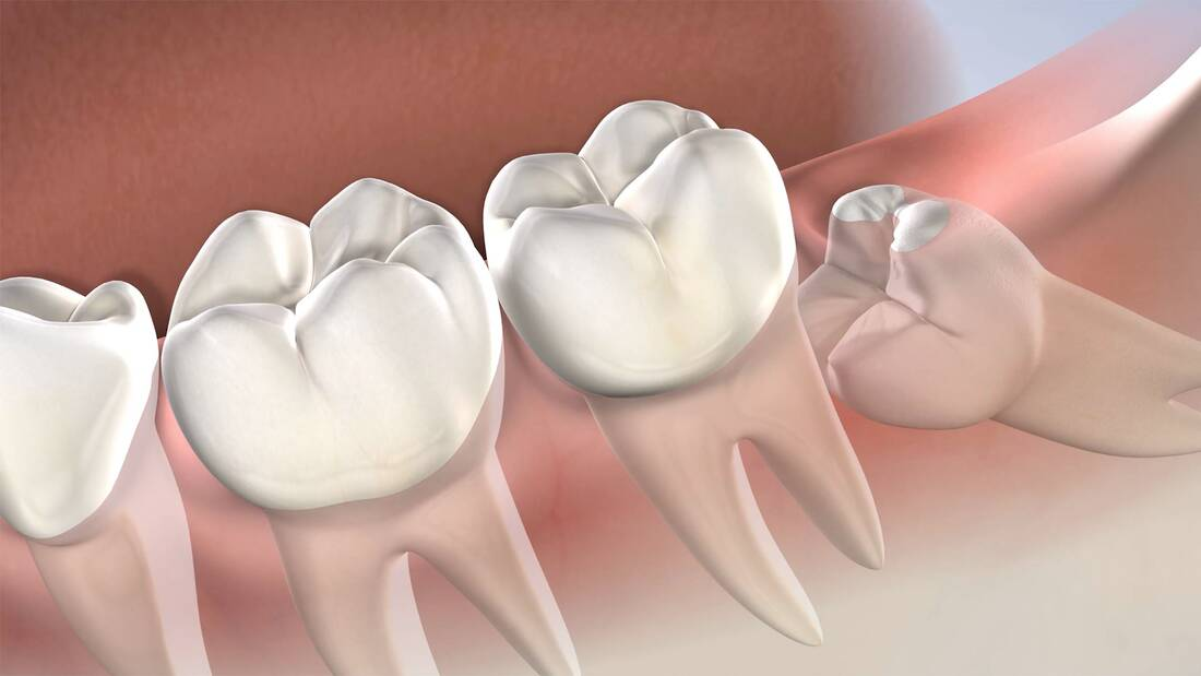 What Are Wisdom Teeth And Why You Need To Remove Them?