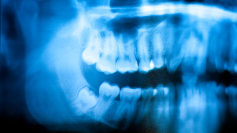 Myths and Facts about Wisdom Teeth Removal