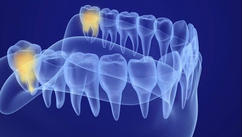 What are the Warning Signs of Impacted Wisdom Teeth?