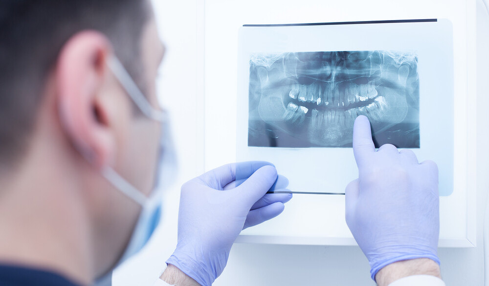 Tips to Speed up the Recovery from Wisdom Teeth Removal Surgery